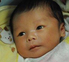 宝宝黄疸多久能退?